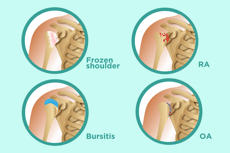 shoulder pain conditions